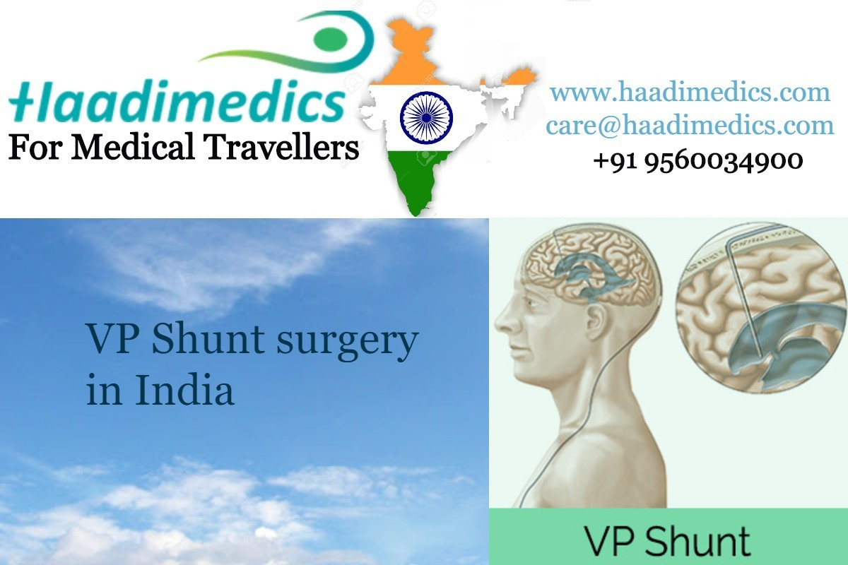 VP Shunt surgery cost in India
