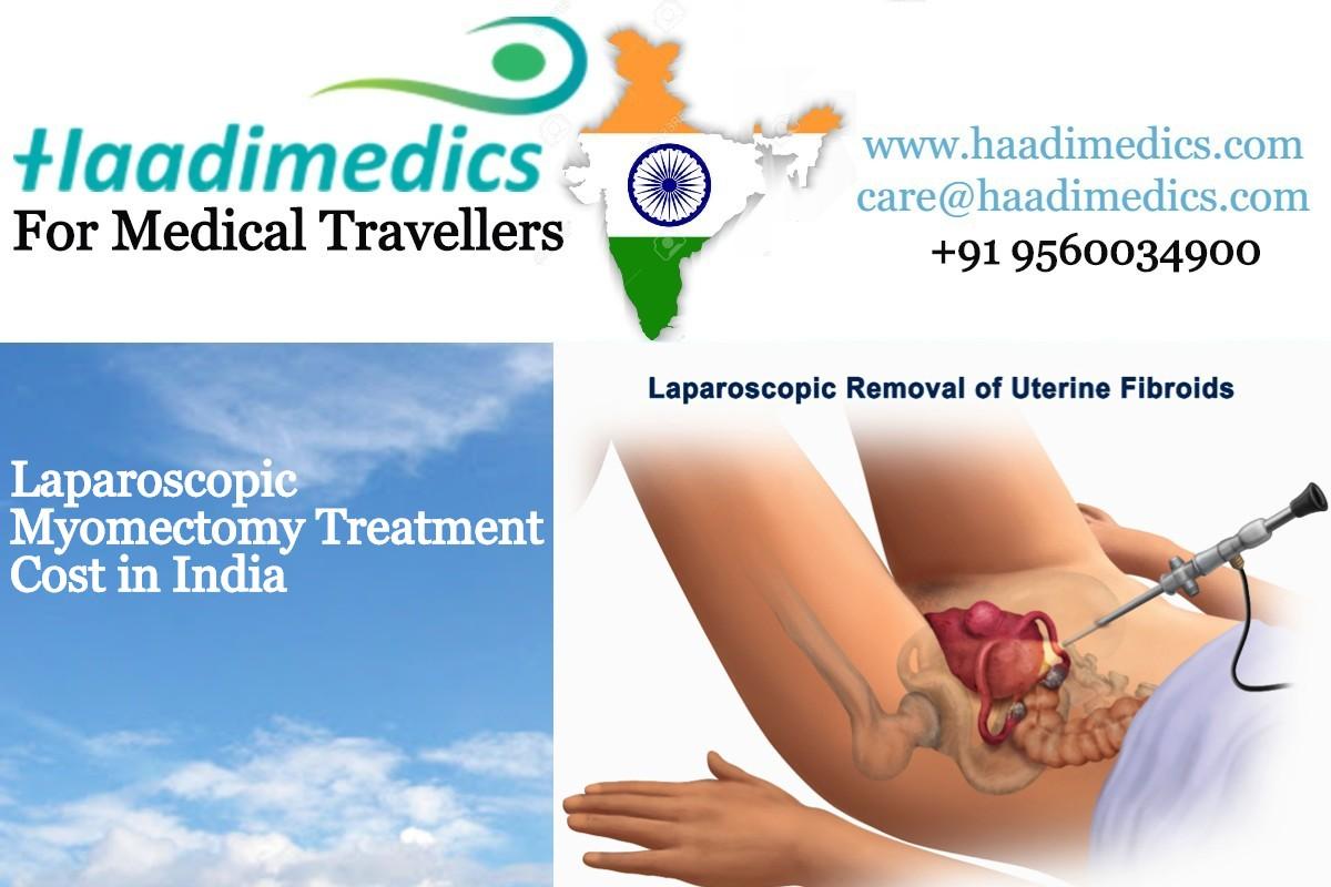 Laparoscopic Myomectomy Treatment Cost in India